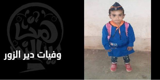 وفاة طفلة ديرية.. متأثرة بلدغة عقرب
