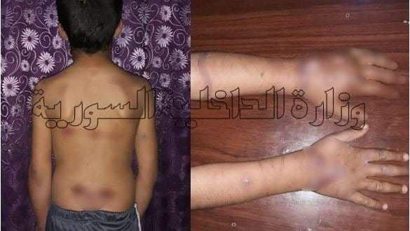 (كونة ضراير).. ضحيتها طفل قتيل وطفل مشوّه من التعذيب شرق ديرالزور